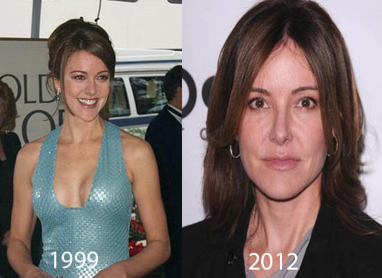 Christa Miller Plastic Surgery Christa Miller Plastic Surgery Before and After Picture