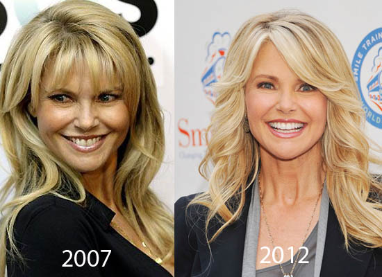 Christie Brinkley Plastic Surgery Did Senior Model Christie Brinkley Have Plastic Surgery?
