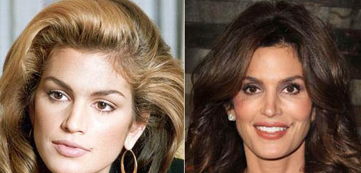 Cindy Crawford Plastic Surgery Cindy Crawford Plastic Surgery Before and After