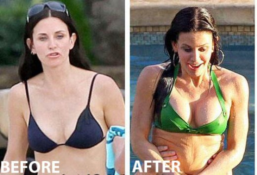 Courteney Cox Plastic Surgery Before After Courteney Cox Plastic Surgery Before and After Pictures