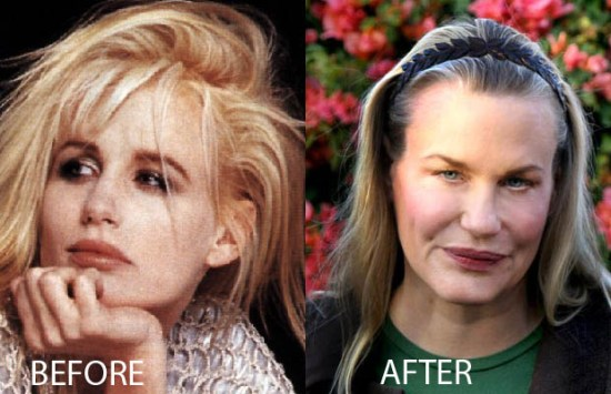 Daryl Hannah Plastic Surgery Daryl Hannah Plastic Surgery Before and After