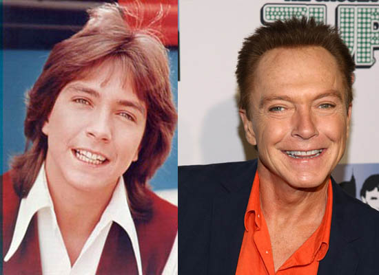 David Cassidy Plastic Surgery Did David Cassidy Have Plastic Surgery?