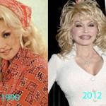 Dolly Parton Plastic Surgery 150x150 Elle Macpherson Plastic Surgery Rumors