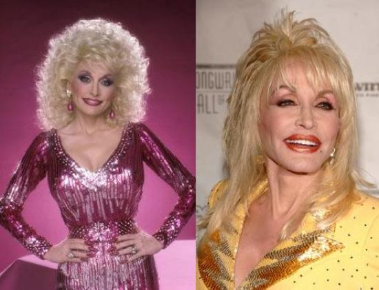Dolly Parton Plastic Surgery Before and After Dolly Parton Plastic Surgery Before and After Pictures