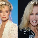 Did Donna Mills Have Plastic Surgery?
