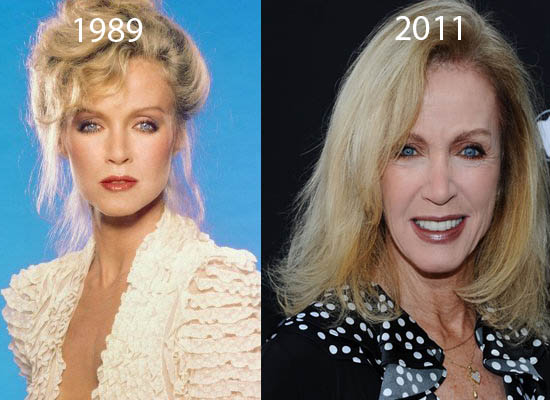 Donna Mills Plastic Surgery Did Donna Mills Have Plastic Surgery?