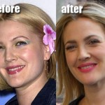 Did Drew Barrymore Have Plastic Surgery?