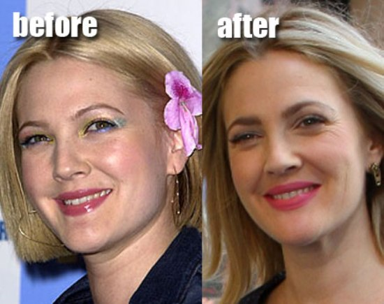 Drew Barrymore Plastic Surgery Did Drew Barrymore Have Plastic Surgery?