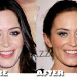Emily Blunt Plastic Surgery Before and After Pictures
