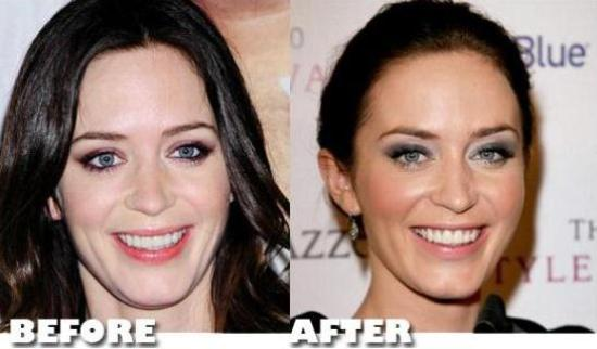 Emily Blunt Plastic Surgery Emily Blunt Plastic Surgery Before and After Pictures