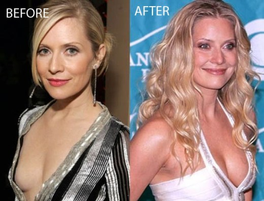 Emily Procter Plastic Surgery Emily Procter Plastic Surgery Before and After Pictures