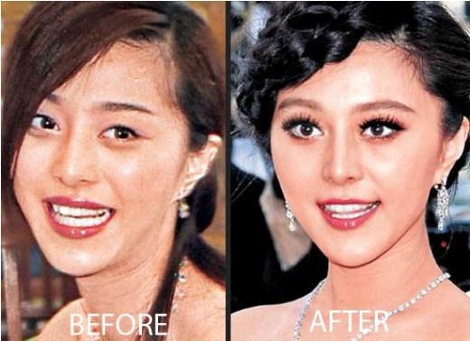 Fan Bing Bing Plastic Surgery Before After Fan Bing Bing Plastic Surgery Before and After Pictures