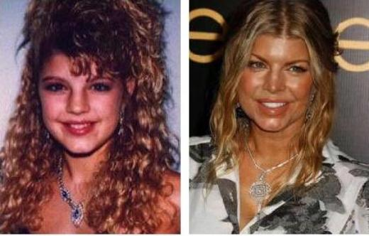 Fergie Plastic Surgery Before After Fergie Plastic Surgery Before and After