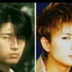 Did Gackt Camui Have Plastic Surgery?