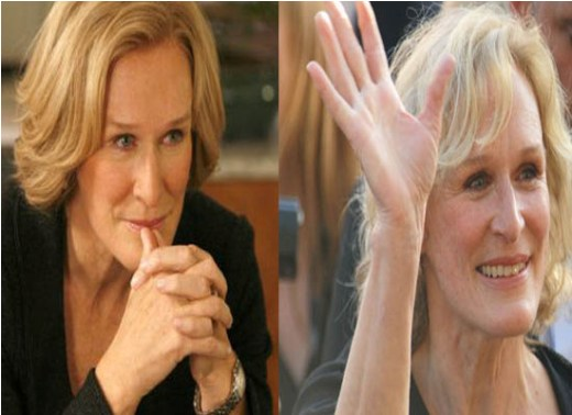 Glenn Close Plastic Surgery Before and After Did Glenn Close Have Plastic Surgery?