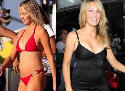 Heather Locklear Plastic Surgery Heather Locklear Plastic Surgery Before and After Pictures