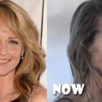 Helen Hunt Bad Plastic Surgery Before and After