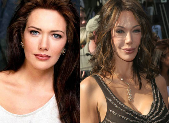 Hunter Tylo Plastic Surgery Hunter Tylo Plastic Surgery Before and After Pictures