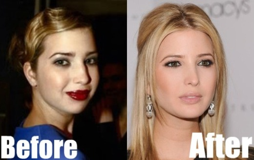 Ivanka Trump Plastic Surgery Before and After Ivanka Trump Plastic Surgery Before and After Pictures