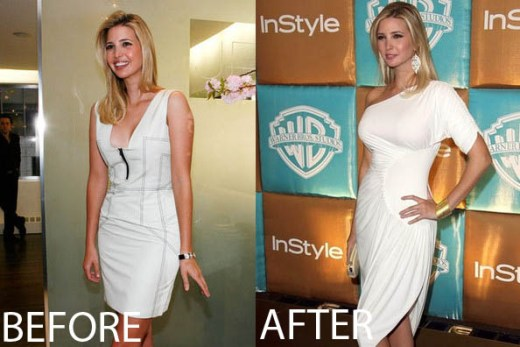 Ivanka Trump Plastic Surgery Ivanka Trump Plastic Surgery Before and After Pictures