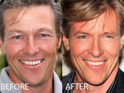 Jack Wagner Plastic Surgery Jack Wagner Plastic Surgery Before and After