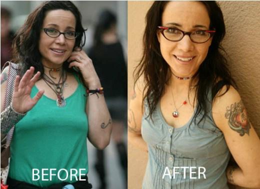 Janeane Garofalo Plastic Surgery Janeane Garofalo Plastic Surgery Before and After