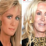 Joan Van Ark Plastic Surgery 150x150 Did Senior Model Christie Brinkley Have Plastic Surgery?