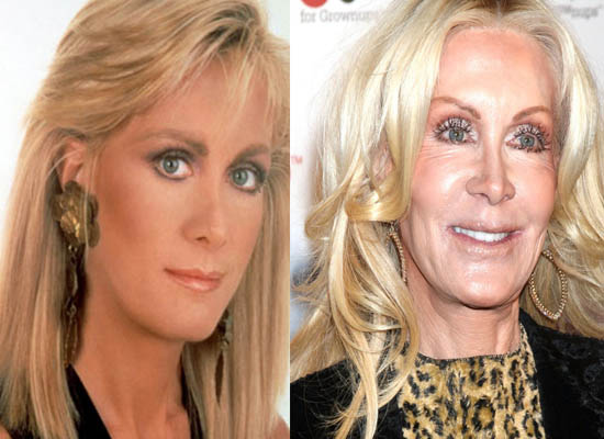 Joan Van Ark Plastic Surgery Joan Van Ark Bad Plastic Surgery Before and After
