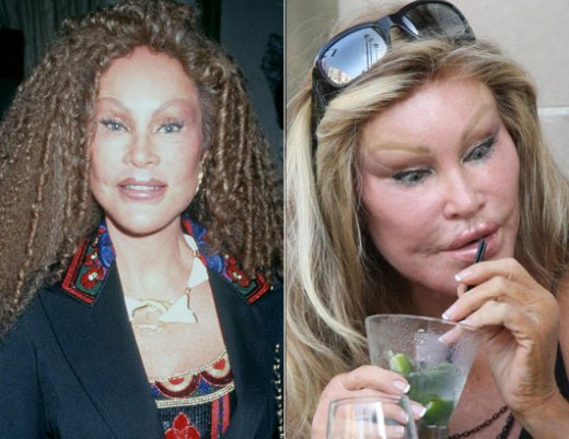 Jocelyn Wildenstein Before and After Picture Jocelyn Wildenstein Before and After Pictures