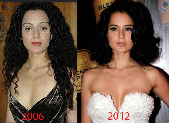 Kangana Ranaut Plastic Surgery Did Kangana Ranaut Have Plastic Surgery?