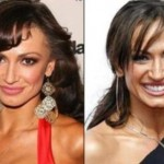 Did Karina Smirnoff Have Plastic Surgery?