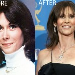 Kate Jackson Bad Plastic Surgery Before and After