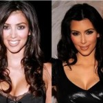 Kim Kardashian Nose Job Rumors – Before and After