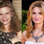 Kyra Sedgwick Regretted Plastic Surgery