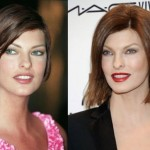 Linda Evangelista Plastic Surgery Botox Before and After
