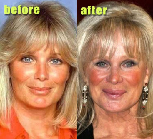 Linda Evans Plastic Surgery Linda Evans Plastic Surgery Before and After