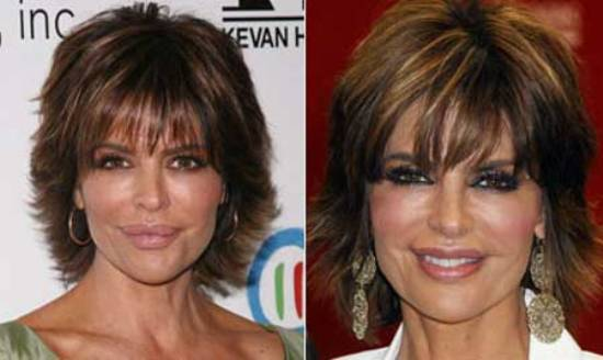 Lisa Rinna Plastic Surgery Lisa Rinna Plastic Surgery for Lip Enhancement