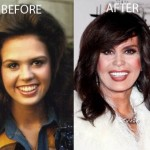 Marie Osmond Plastic Surgery Before and After Picture