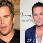 Mark McGrath Plastic Surgery Rumors