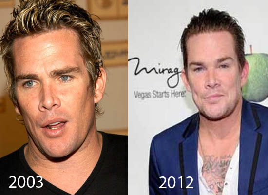 Mark McGrath Plastic Surgery Mark McGrath Plastic Surgery Rumors