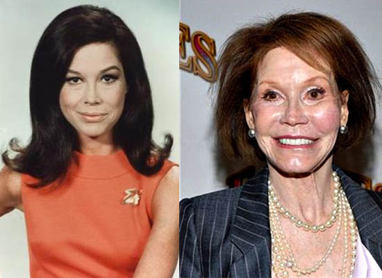 Mary Tyler Moore Plastic Surgery Too Much Plastic Surgery for Mary Tyler Moore