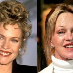 Melanie Griffith Plastic Surgery 150x150 Wendy Williams Plastic Surgery Before and After