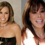 Melissa Rivers Plastic Surgery Before and After Pictures