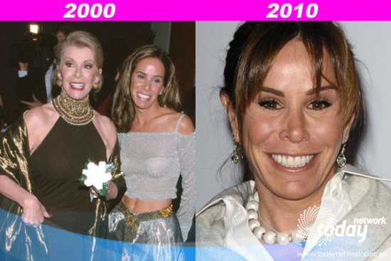 Melissa Rivers Plastic Surgery Before After Melissa Rivers Plastic Surgery Before and After Pictures