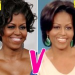 Michelle Obama Plastic Surgery 150x150 Did Steve Martin Have Plastic Surgery?