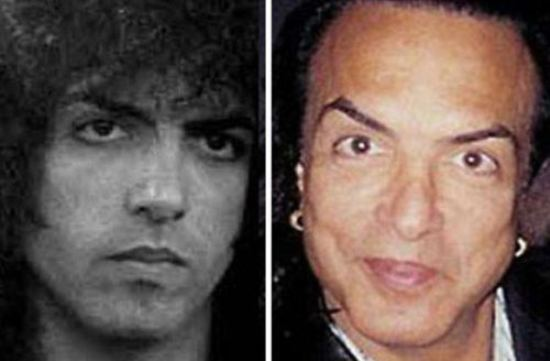 Paul Stanley Plastic Surgery Paul Stanley Plastic Surgery Before and After Picture