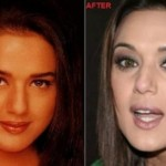 Preity Zinta Plastic Surgery Rumors – Before and After