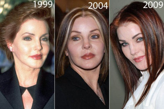 Priscilla Presley Plastic Surgery Before After Priscilla Presley Plastic Surgery Before and After