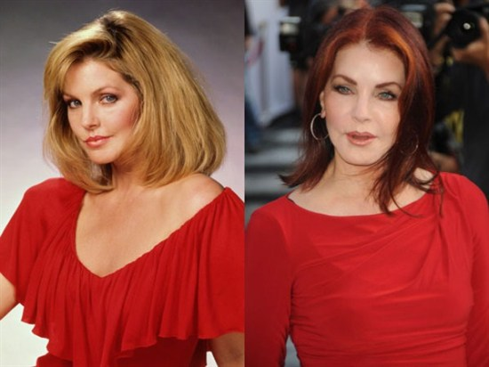 Priscilla Presley Plastic Surgery Priscilla Presley Plastic Surgery Before and After