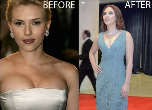 Scarlett Johansson Breast Reduction Scarlett Johansson Breast Reduction Before and After